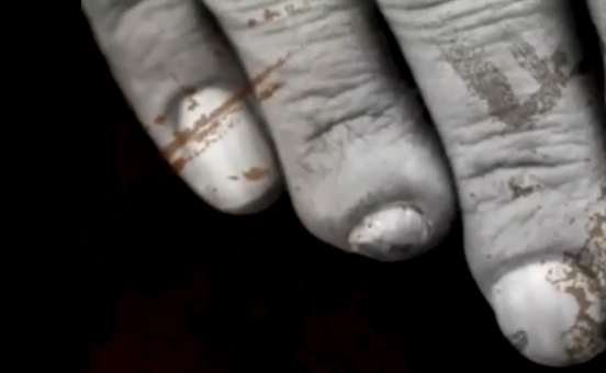 Tony Iommi Fingers Injury Plastic After attempting to learn to play