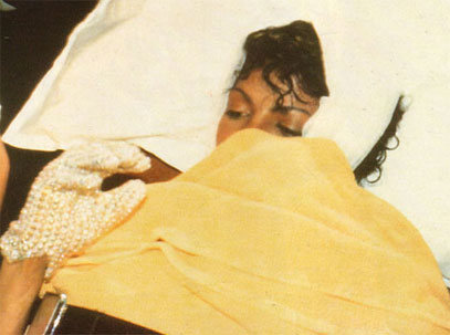 Michael Jackson 1984 Accident Scalp Burn Pepsi Commercial