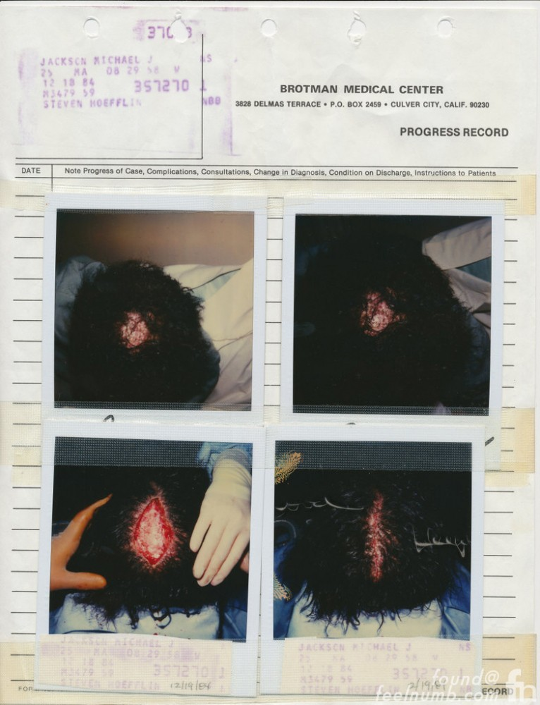 Michael Jackson's 1984 Pepsi Commercial Hair Burning