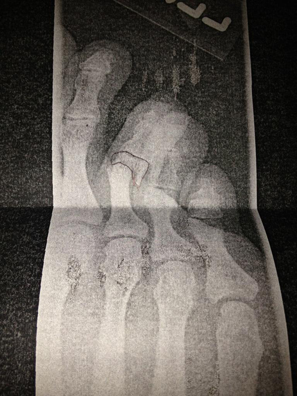 Matt Bellamy Muse Broken Foot X-Ray