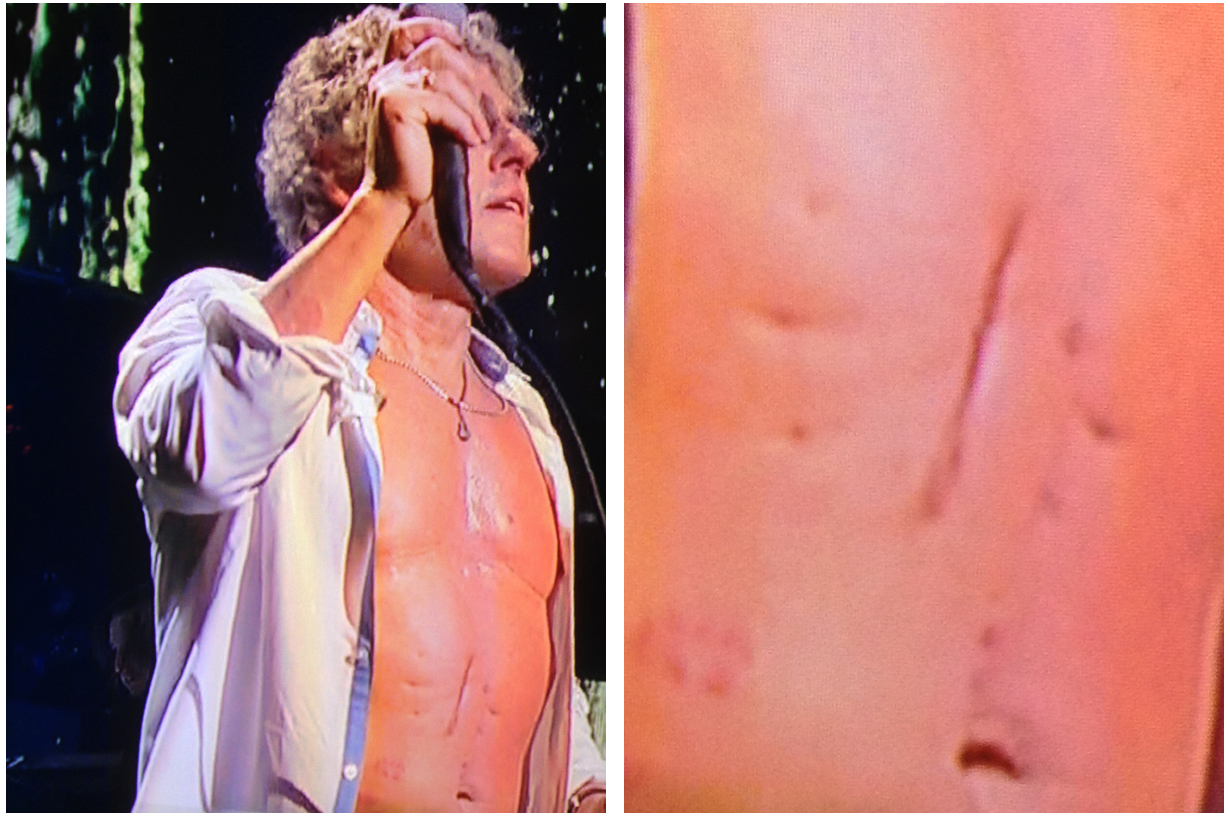 Roger Daltrey The Who Stomach Scar